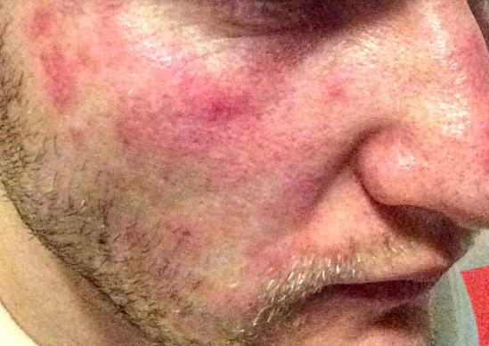 Nach dem duschen  - (Gesicht, Beauty, Dermatologie)