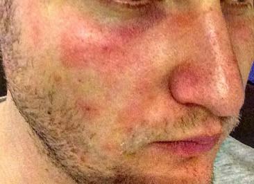 Gesicht  - (Gesicht, Beauty, Dermatologie)