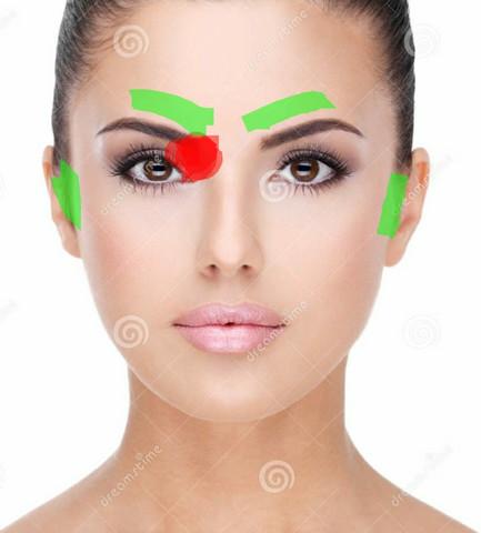 rot: Druckgefühl, grün: meist schmerzender Bereich  - (Augen, Kopfschmerzen, Gesundheit)