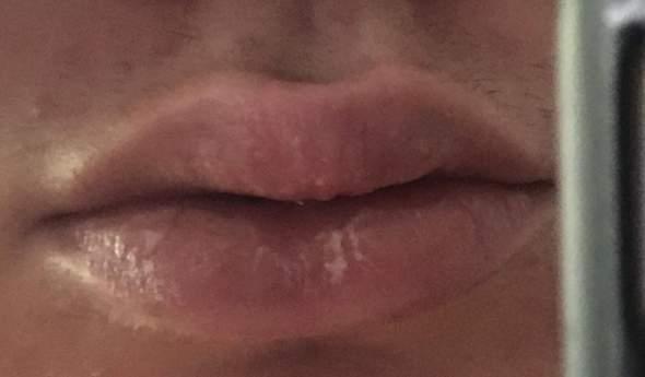wie kann ich diese lippen heilen?