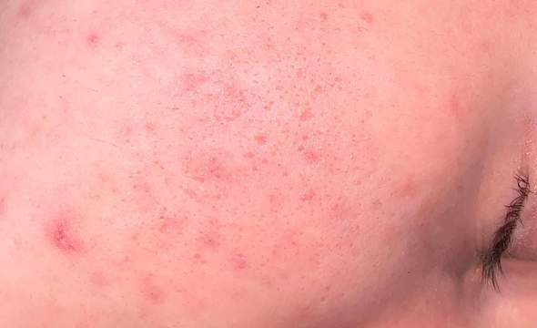 Wie schlimm ist meine Haut und was kann mir helfen?