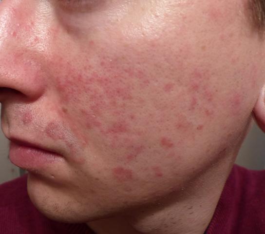 Hautausschlag - (Dermatologie, Hautausschlag)