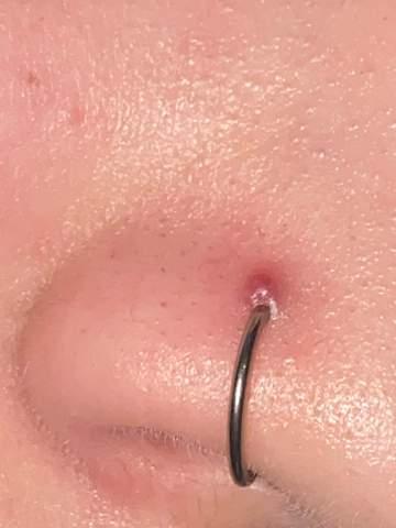 Wildfleisch oder entzündung (nostril piercing)?