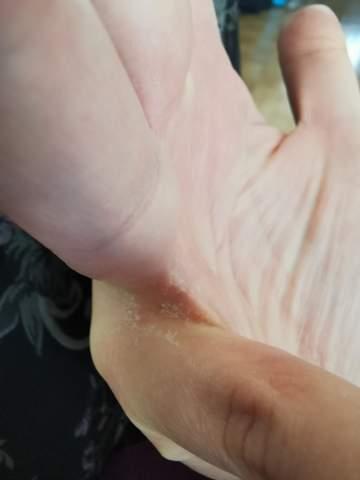 Woher kommt diese komische trockene Haut an den Händen?
