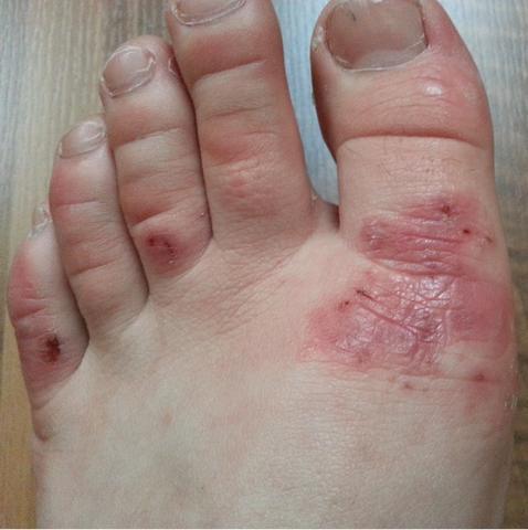Wunden am Fuß!Ursachen?
