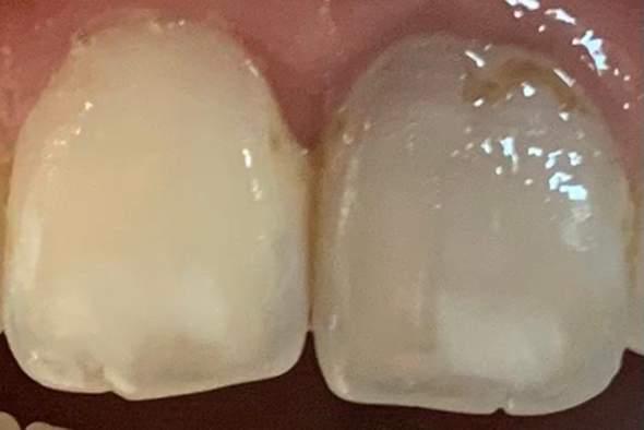 Zahn abgestorben?