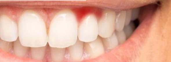 - (Zähne, Entzündung)