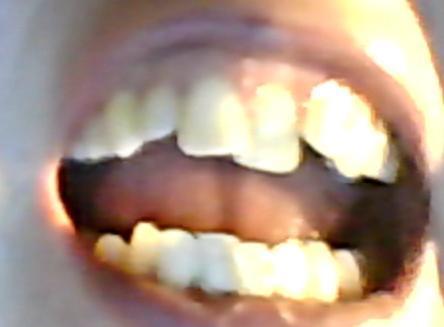 Bild 1 - (Behandlung, Zahnspange, Kieferorthopädie)