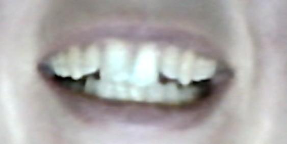 Bild 2 - (Behandlung, Zahnspange, Kieferorthopädie)