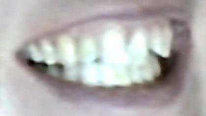 Wie lange musstet ihr eure zahnspange tragen