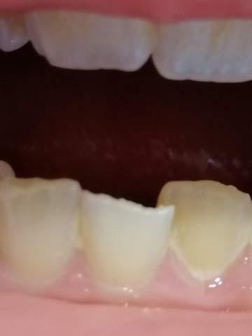 Zahnstück abgebrochen?