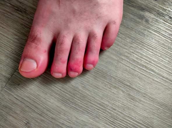 Zehen rot, angeschwollen und Schmerzen, aber warum?