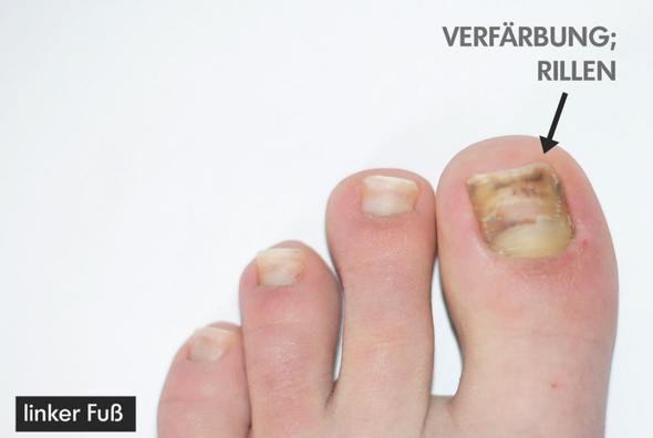 linker Fuß - (Haut, Füße, nägel)