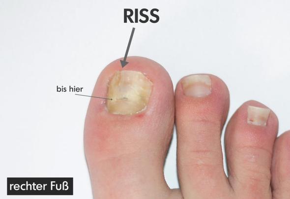 rechter Fuß - (Haut, Füße, nägel)