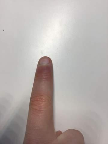 Zeigefinger angeschwollen und lila-blaulich?