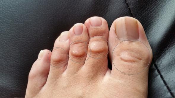 zu viel Haut auf den Zehenkuppen  oder doch wasser?