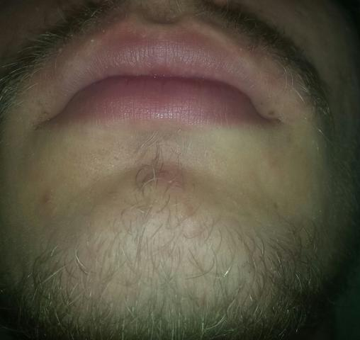 Lippen front - (Lippe, Umfrage, Zyanose)