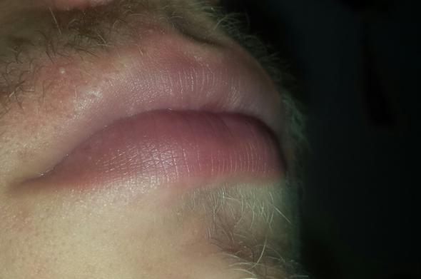 Lippen seitlich - (Lippe, Umfrage, Zyanose)